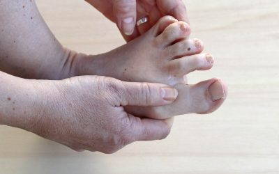 Dry Skin in the Foot Associated with Cancer Treatment