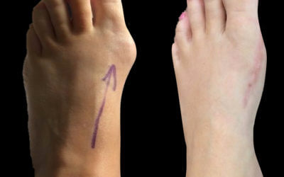 The Bunion hallux valgus deformity Number One