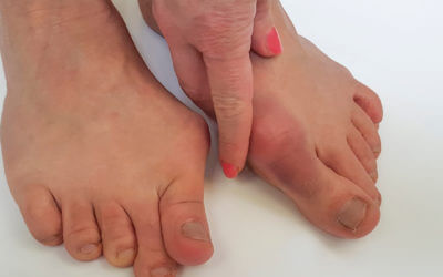 Testimonial feedback on bunions