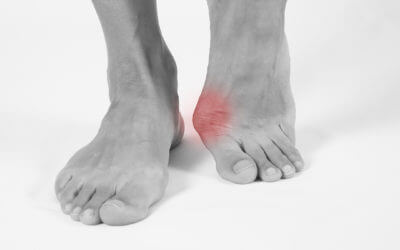 Medically related painful toes