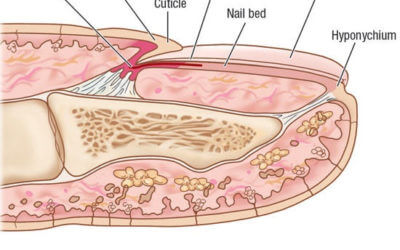Nail Toxicity after Cancer Treatment