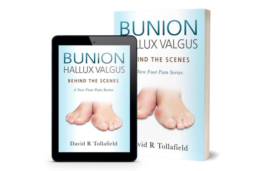 Bunions Behind the Scenes