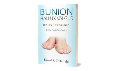 Bunions Behind the Scenes
