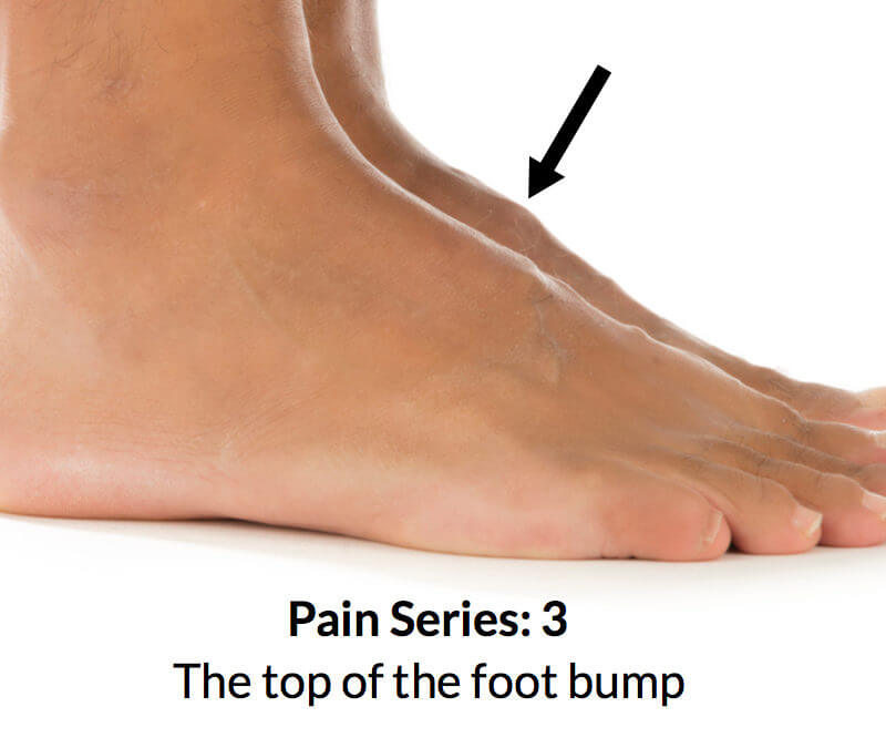 Foot bump on top of the foot