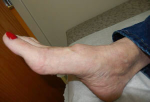 Foot bump on top of the foot | Consulting Footpain
