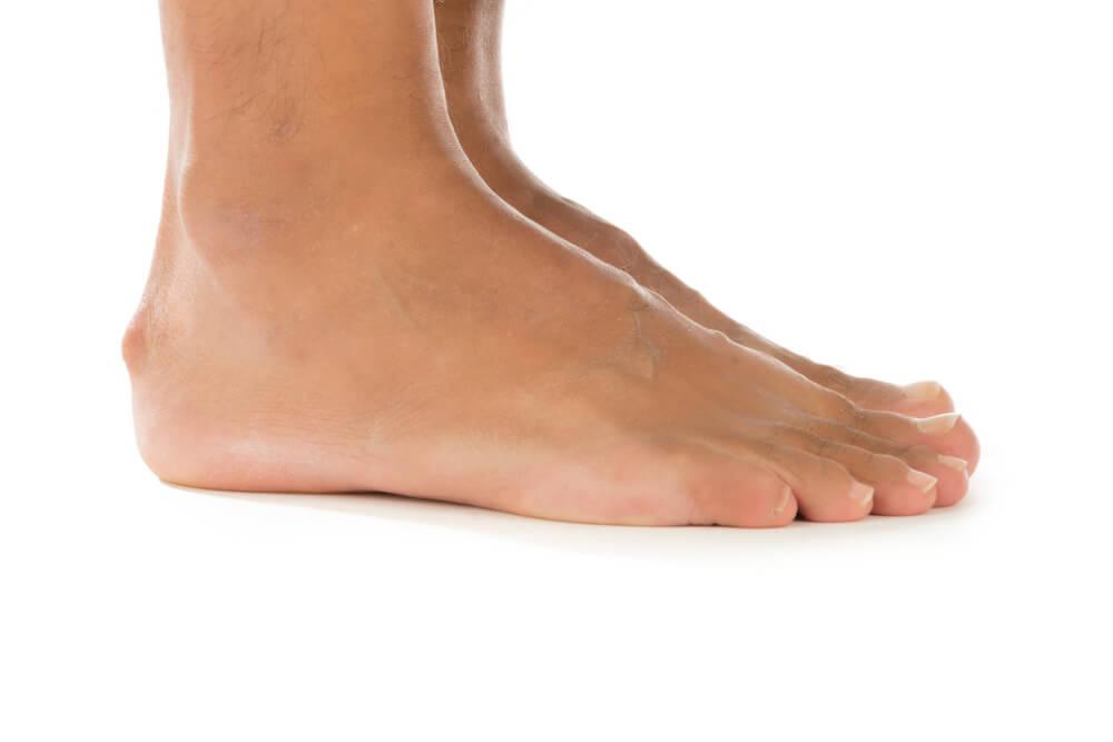 A mysterious heel bump