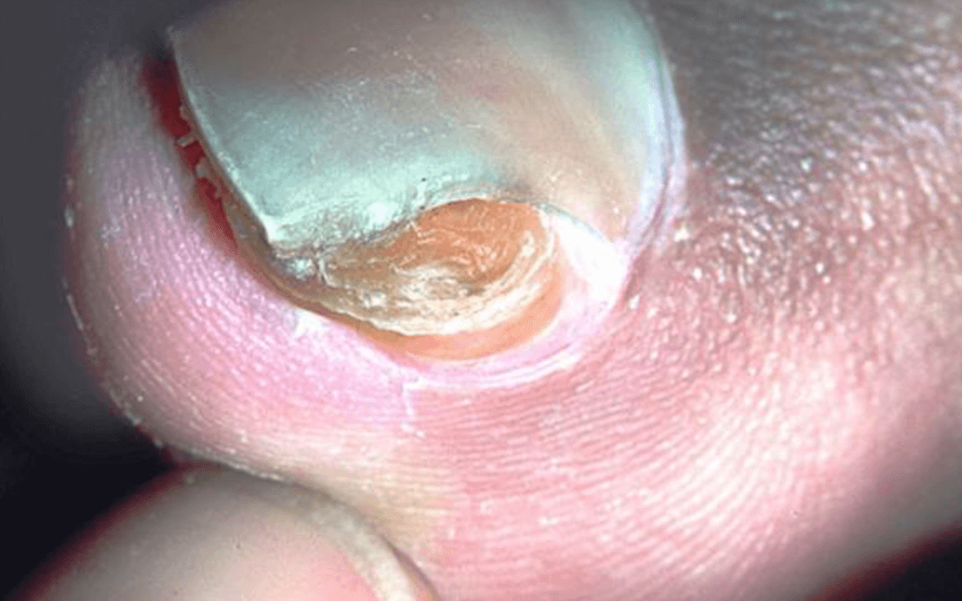 What's that at the end of my toe?