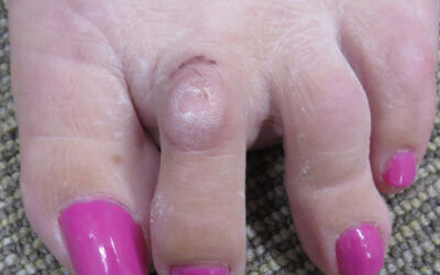 Hammer toes & what the clinician should know