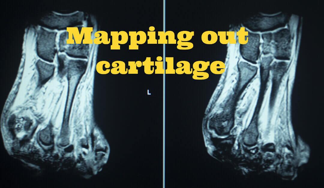 Cartilage Damage and hallux valgus