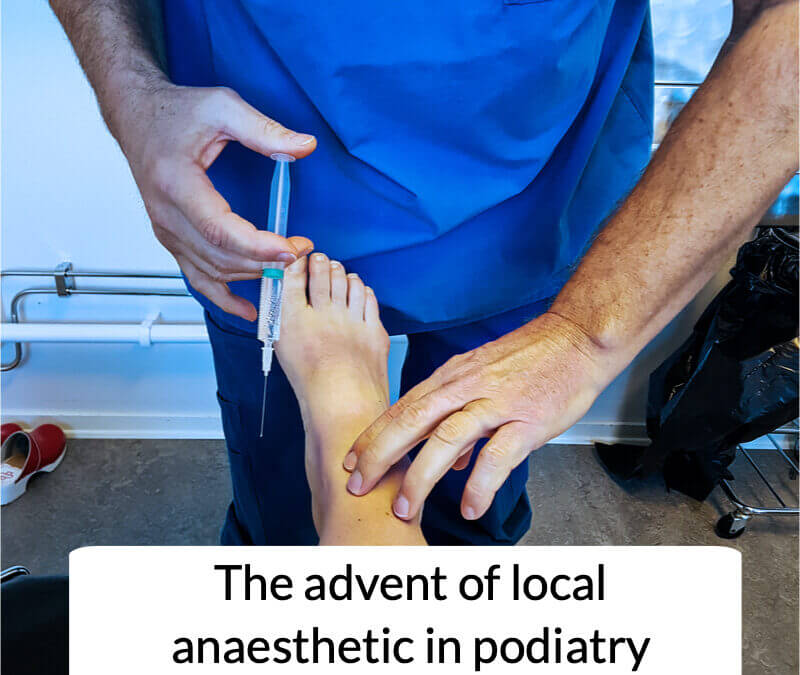 When did podiatrists first use local anaesthetic?