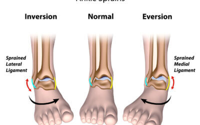 Ankle Sprains and Strains
