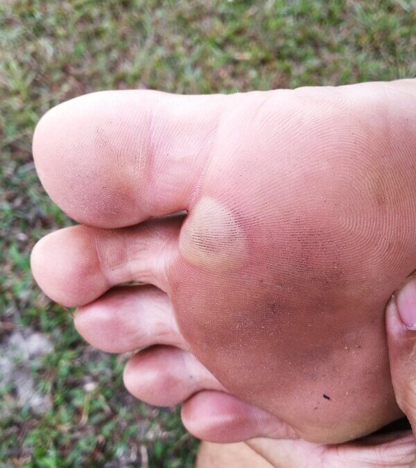 Pain and prevention of blisters