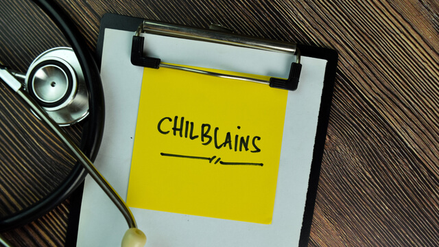 Chilblains and presenting features